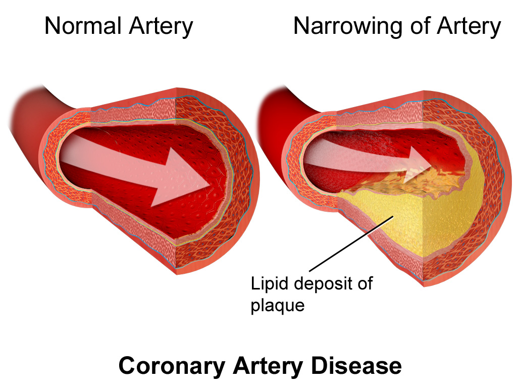 Narrowed blood vessels due to cholesterol buildups